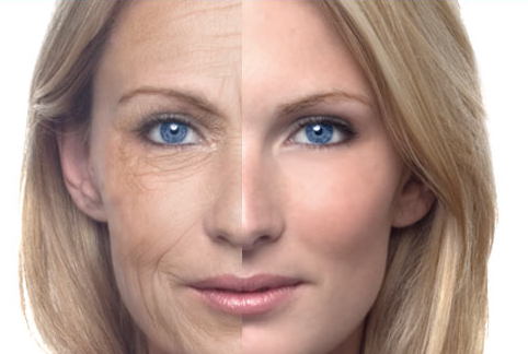 Age Defying Laser Technology
